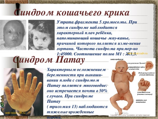 Синдром кошачьего крика Утрата фрагмента 5 хромосомы. При этом синдроме наблюдается характерный плач ребёнка, напоминающий кошачье мяу-канье, причиной которого является изме-нение гортани. Частота синдрома пример-но 1:45000. Соотношение полов М1 : Ж1,3. web-local.rudn.ru Синдром Патау Характерным осложнением беременности при вынаши-вании плода с синдромом Патау является многоводие: оно встречается почти в 50% случаев. При синдроме Патау ( трисомия 13) наблюдаются тяжелые врожденные пороки. 7 наследственные болезни человека web-local.rudn.ru