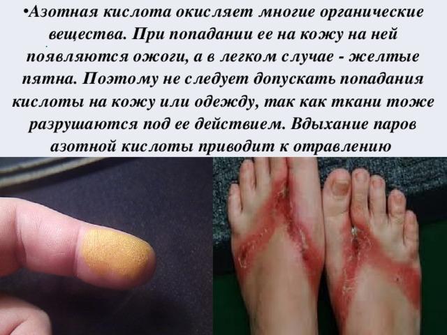 Азотная кислота окисляет многие органические вещества. При попадании ее на кожу на ней появляются ожоги, а в легком случае - желтые пятна. Поэтому не следует допускать попадания кислоты на кожу или одежду, так как ткани тоже разрушаются под ее действием. Вдыхание паров азотной кислоты приводит к отравлению
