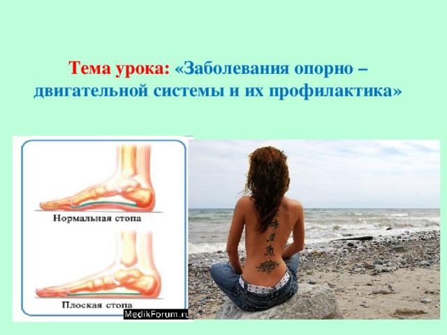 Тема урока: «Заболевания опорно – двигательной системы и их профилактика»