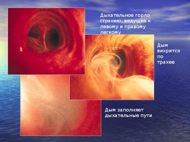 Дыхательное горло (трахея), ведущее к левому и правому легкому Дым вихрится по трахее Дым заполняет дыхательные пути