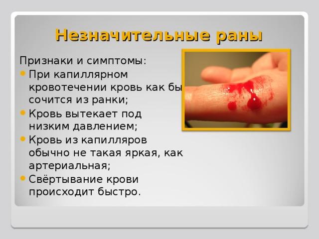 Незначительные раны Признаки и симптомы: