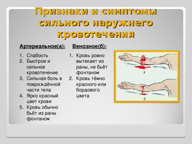 Признаки и симптомы сильного наружнего кровотечения Артериальное(а) : Венозное(б):