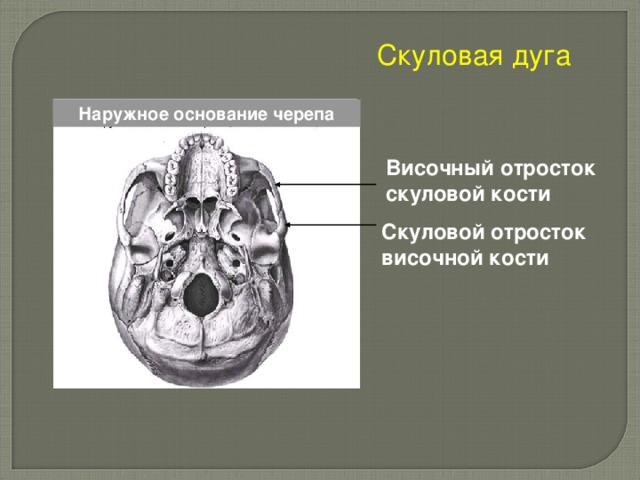 Скуловая дуга Наружное основание черепа Височный отросток скуловой кости  Скуловой отросток височной кости