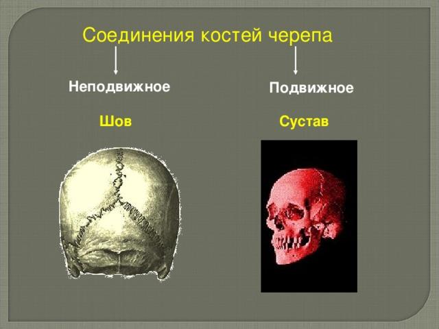 Соединения костей черепа Неподвижное  Подвижное  Шов Сустав