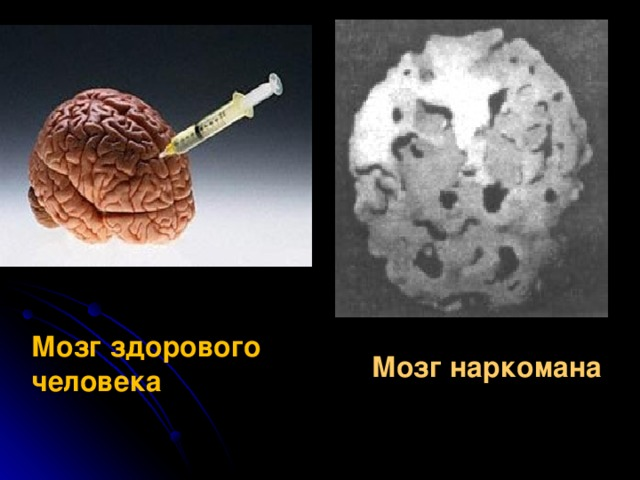 Мозг здорового человека Мозг наркомана