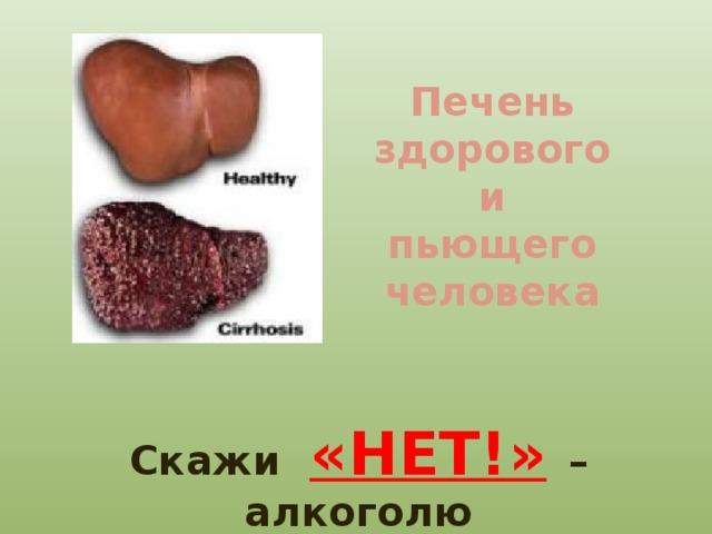 Печень здорового  и пьющего человека Скажи  «НЕТ!»  – алкоголю