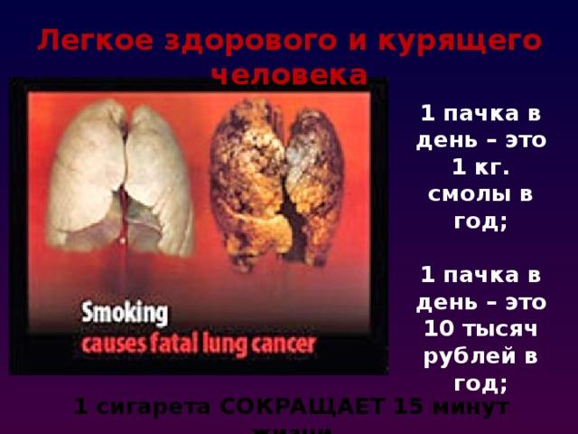 Легкое здорового и курящего человека 1 пачка в день – это 1 кг. смолы в год;  1 пачка в день – это 10 тысяч рублей в год; 1 сигарета СОКРАЩАЕТ 15 минут жизни
