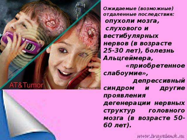 Ожидаемые (возможные) отдаленные последствия:  опухоли мозга,  слухового и вестибулярных нервов (в возрасте 25-30 лет), болезнь Альцгеймера,  «приобретенное слабоумие»,  депрессивный синдром и другие проявления дегенерации нервных структур головного мозга (в возрасте 50-60 лет).