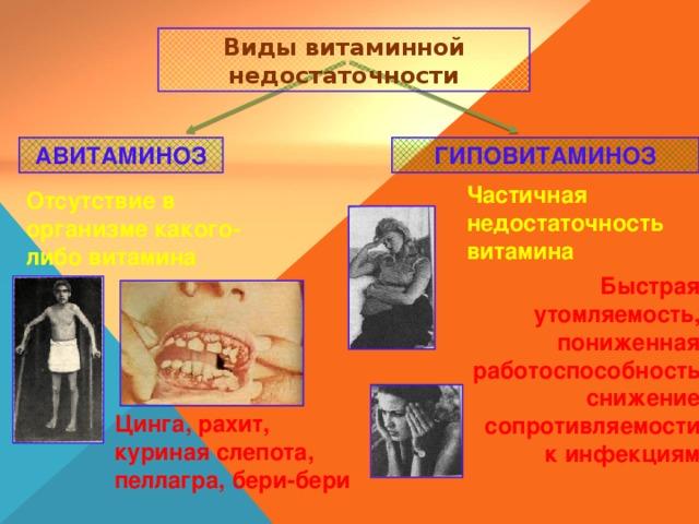 Виды витаминной недостаточности АВИТАМИНОЗ ГИПОВИТАМИНОЗ Частичная недостаточность витамина Отсутствие в организме какого-либо витамина Быстрая утомляемость, пониженная работоспособность снижение сопротивляемости к инфекциям Цинга, рахит, куриная слепота, пеллагра, бери-бери