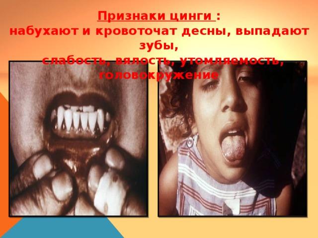 Признаки цинги : набухают и кровоточат десны, выпадают зубы,  слабость, вялость, утомляемость, головокружение