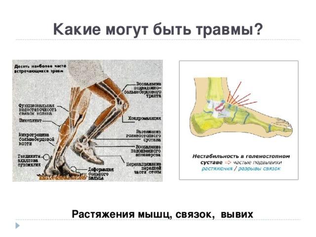 Какие могут быть травмы? Растяжения мышц, связок, вывих