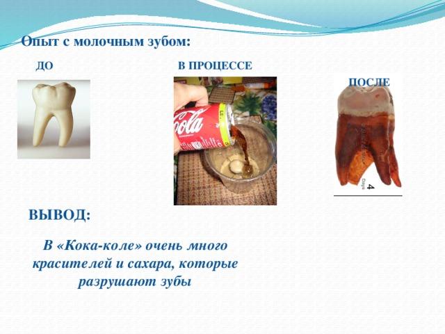 Опыт с молочным зубом:    ДО В  ПРОЦЕССЕ  ПОСЛЕ ВЫВОД: В «Кока-коле» очень много красителей и сахара, которые разрушают зубы
