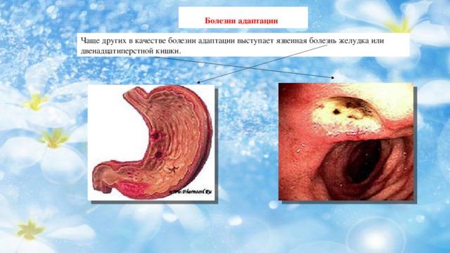Болезни адаптации  Чаще других в качестве болезни адаптации выступает язвенная болезнь желудка или двенадцатиперстной кишки.