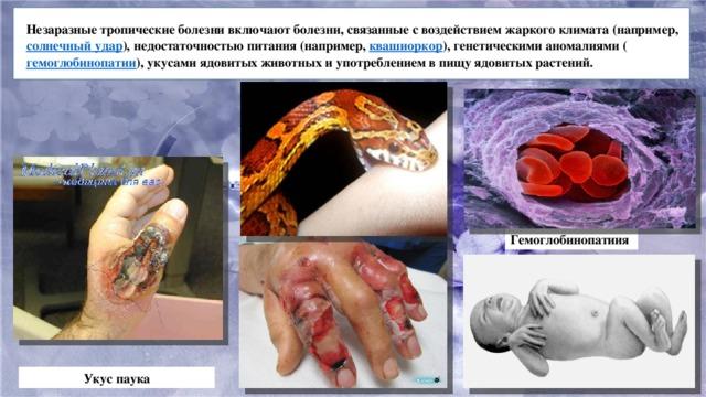 Незаразные тропические болезни включают болезни, связанные с воздействием жаркого климата (например, солнечный удар ), недостаточностью питания (например, квашиоркор ), генетическими аномалиями ( гемоглобинопатии ), укусами ядовитых животных и употреблением в пищу ядовитых растений. Гемоглобинопатиия Укус паука