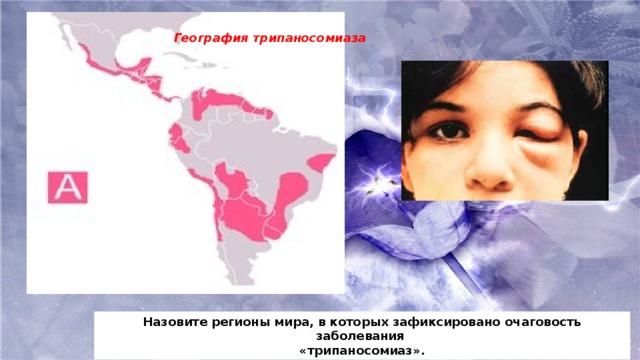 География трипаносомиаза Назовите регионы мира, в которых зафиксировано очаговость заболевания «трипаносомиаз».