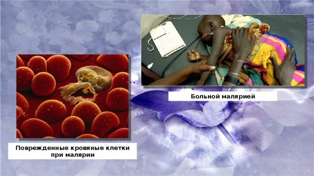 Больной малярией Поврежденные кровяные клетки при малярии