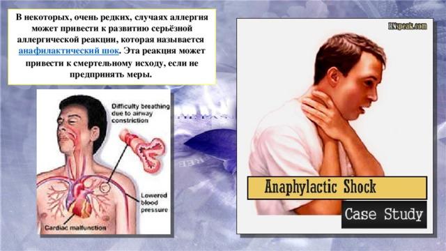 В некоторых, очень редких, случаях аллергия может привести к развитию серьёзной аллергической реакции, которая называется анафилактический шок . Эта реакция может привести к смертельному исходу, если не предпринять меры.
