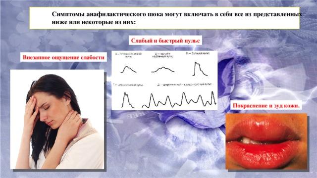 Симптомы анафилактического шока могут включать в себя все из представленных ниже или некоторые из них: Слабый и быстрый пульс Внезапное ощущение слабости Покраснение и зуд кожи.