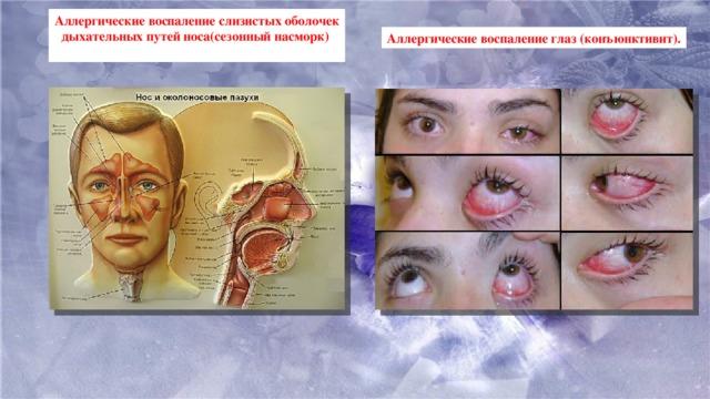 Аллергические воспаление слизистых оболочек дыхательных путей носа(сезонный насморк)  Аллергические воспаление глаз (конъюнктивит).