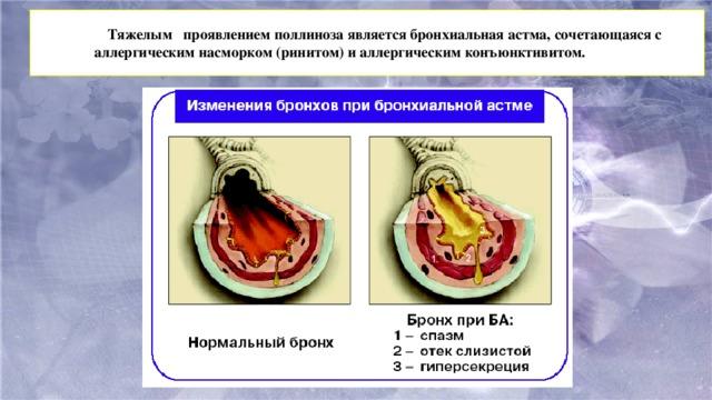 Тяжелым проявлениемполлинозаявляется бронхиальная астма, сочетающаяся с аллергическим насморком (ринитом) и аллергическим конъюнктивитом.