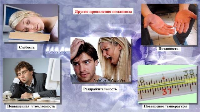 Другие проявления поллиноза Слабость Потливость Раздражительность Повышенная утомляемость Повышение температуры