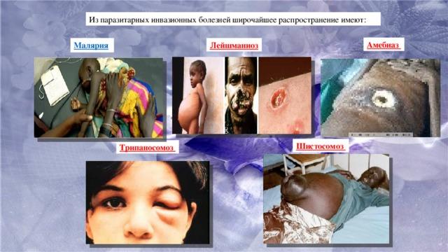 Из паразитарных инвазионных болезней широчайшее распространение имеют: Амебиаз Малярия  Лейшманиоз Шистосомоз Трипаносомоз