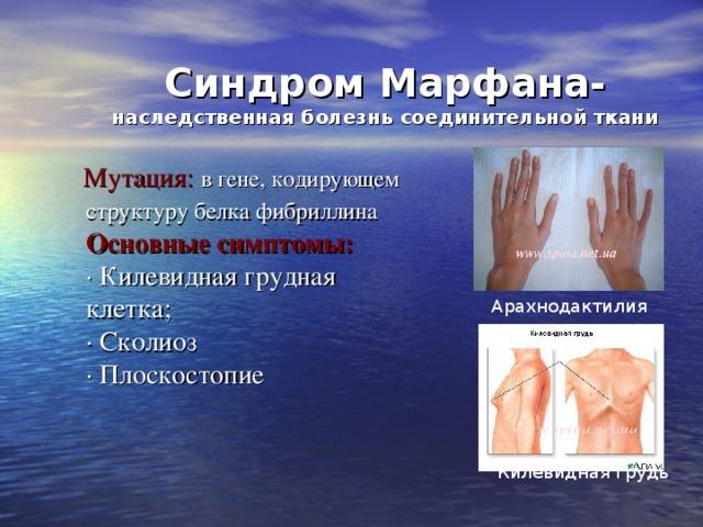 Синдром Марфана-  наследственная болезнь соединительной ткани  Мутация: в гене, кодирующем структуру белка фибриллина    Основные симптомы:  ·Килевидная грудная клетка;  · Сколиоз  · Плоскостопие   Арахнодактилия  Килевидная грудь