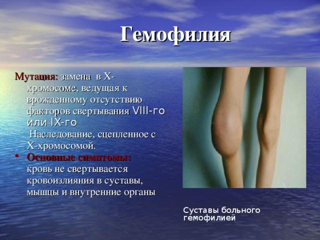 Гемофилия Мутация: замена в Х-хромосоме, ведущая к врожденному отсутствию факторов свертывания VIII-го или IX-го  Наследование, сцепленное с Х-хромосомой.  Основные симптомы:  кровь не свертывается  кровоизлияния в суставы, мышцы и внутренние органы     Суставы больного гемофилией