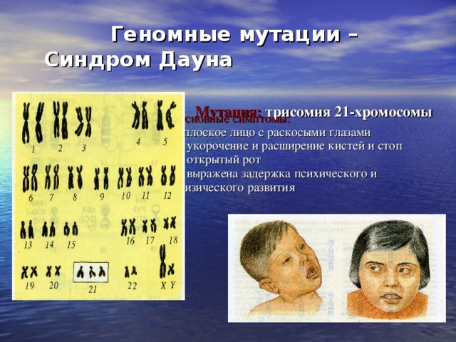 Геномные мутации –  Синдром Дауна    Мутация: трисомия 21-хромосомы   Основные симптомы:  - плоское лицо с раскосыми глазами  - укорочение и расширение кистей и стоп  - открытый рот  - выражена задержка психического и физического развития
