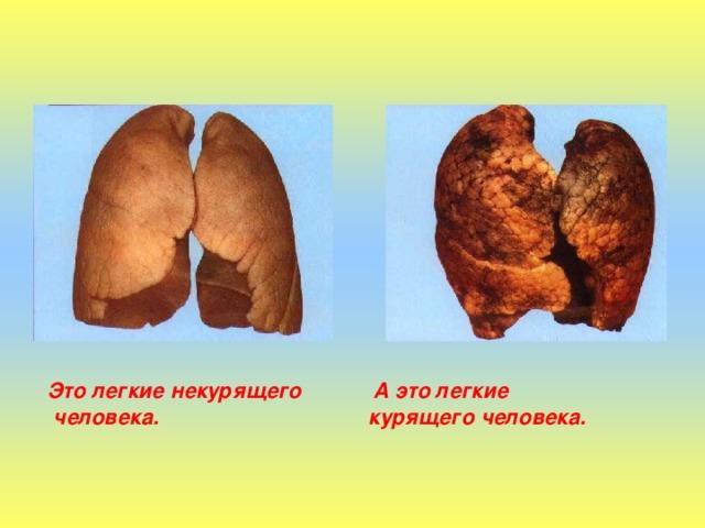 Это легкие некурящего А это легкие  человека. курящего человека.