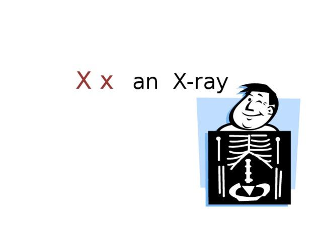 X x  an X-ray