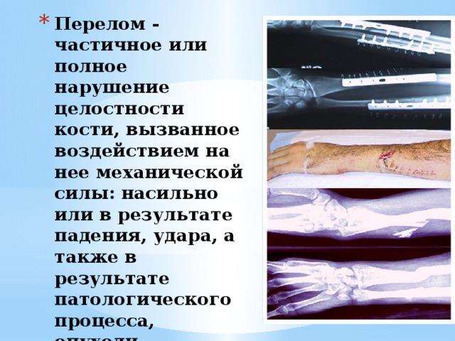Перелом - частичное или полное нарушение целостности кости, вызванное воздействием на нее механической силы: насильно или в результате падения, удара, а также в результате патологического процесса, опухоли, воспаления.