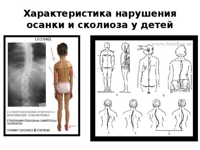 Характеристика нарушения осанки и сколиоза у детей