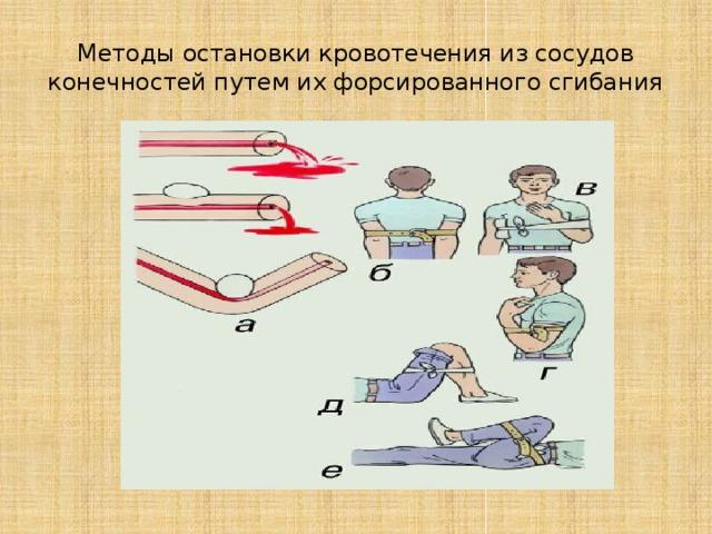 Методы остановки кровотечения из сосудов конечностей путем их форсированного сгибания