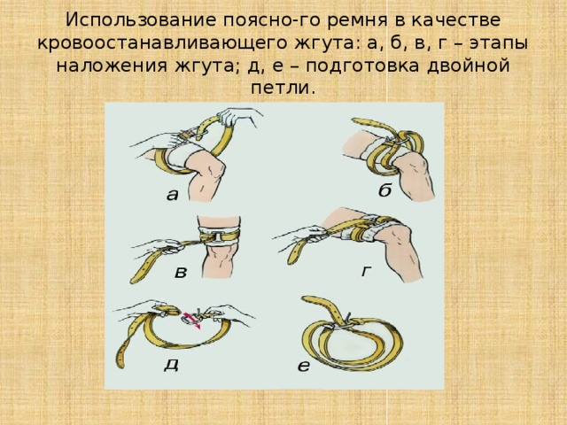 Использование поясно-го ремня в качестве кровоостанавливающего жгута: а, б, в, г – этапы наложения жгута; д, е – подготовка двойной петли.