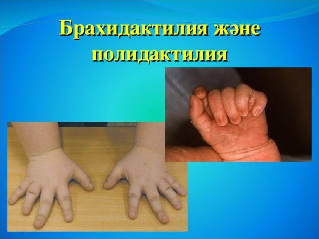 Брахидактилия және  полидактилия