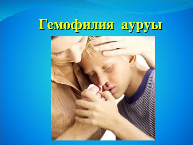 Гемофилия ауруы