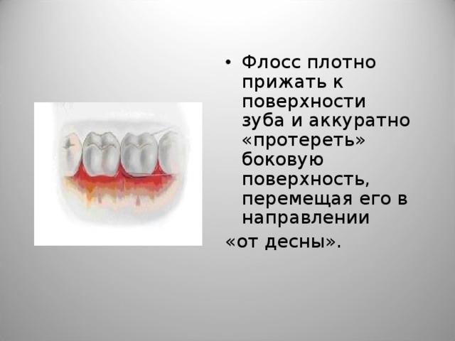 Флосс плотно прижать к поверхности зуба и аккуратно «протереть» боковую поверхность, перемещая его в направлении