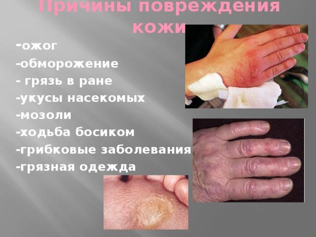 Причины повреждения кожи - ожог -обморожение - грязь в ране -укусы насекомых -мозоли -ходьба босиком -грибковые заболевания ног -грязная одежда