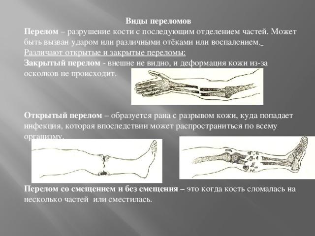 Виды переломов Перелом – разрушение кости с последующим отделением частей. Может быть вызван ударом или различнымиотёкамиили воспалением.  Различают открытые и закрытые переломы: Закрытый перелом - внешне не видно, и деформация кожи из-за осколков не происходит.    Открытый перелом – образуется рана с разрывом кожи, куда попадает инфекция, которая впоследствии может распространиться по всему организму.     Перелом со смещением и без смещения – это когда кость сломалась на несколько частей или сместилась.