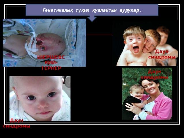 Генетикалық тұқым қуалайтын аурулар. Даун синдромы ШЕРШЕВСКИЙ-ТЕРНЕР Даун синдромы Даун синдромы