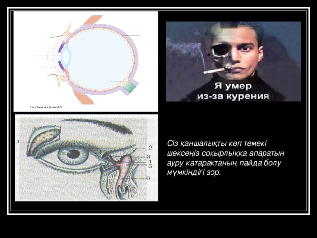 Сіз қаншалықты көп темекі шексеңіз соқырлыққа апаратын ауру катарактаның пайда болу мүмкіндігі зор.