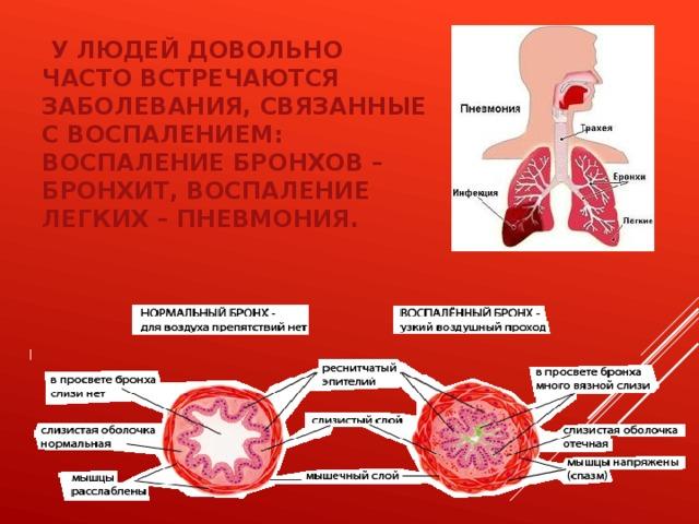 У людей довольно часто встречаются заболевания, связанные с воспалением: воспаление бронхов – бронхит, воспаление легких – пневмония.