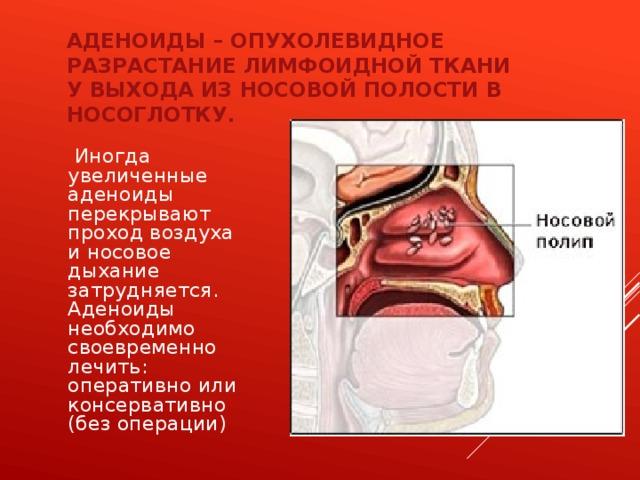 Аденоиды – опухолевидное разрастание лимфоидной ткани у выхода из носовой полости в носоглотку.  Иногда увеличенные аденоиды перекрывают проход воздуха и носовое дыхание затрудняется. Аденоиды необходимо своевременно лечить: оперативно или консервативно (без операции)