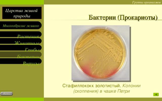 Бактерии (Прокариоты) Стафиллококк золотистый. Колонии (скопления) в чашке Петри