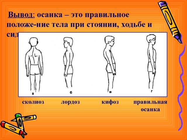 Вывод :  осанка – это правильное положе-ние тела при стоянии,  ходьбе и сидении. правильная осанка кифоз сколиоз лордоз