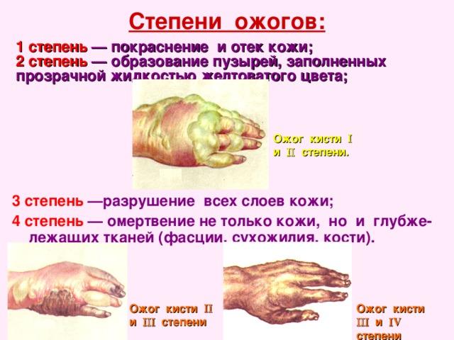 Степени ожогов: 1степень  — покраснение иотек кожи;  2степень  — образование пузырей, заполненных прозрачной жидкостью желтоватого цвета; Ожог кисти  и  степени. 3степень  —разрушение всех слоев кожи;  4степень  — омертвение нетолько кожи, но и глубже-лежащих тканей (фасции, сухожилия, кости).  Ожог кисти  и  степени Ожог кисти  и  V степени