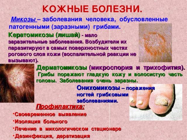 КОЖНЫЕ БОЛЕЗНИ.  Микозы – заболевания человека, обусловленные патогенными (заразными) грибами. Кератомикозы (лишай) - мало заразительные заболевания. Возбудители их паразитируют в самых поверхностных частях рогового слоя кожи (воспалительной реакции не вызывают). Дерматомикозы (микроспория и трихофития). Грибы поражают гладкую кожу и волосистую часть головы. Заболевания очень заразны. Онихомикозы – поражения ногтей  грибковыми заболеваниями.  Профилактика: Своевременное выявление Изоляция больного Лечение в микологическом стационаре Дезинфекция, дератизация