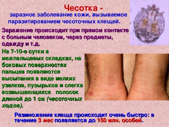 Чесотка -  заразное заболевание кожи, вызываемое паразитированием чесоточных клещей.  Заражение происходит при прямом контакте с больным человеком, через предметы, одежду ит.д. На 7-10-е сутки в межпальцевых складках, на боковых поверхностях пальцев появляются высыпания в виде мелких узелков, пузырьков и слегка возвышающихся полосок длиной до 1 см (чесоточных ходов). Размножение клеща происходит очень быстро: в течение 3 мес появляется до 150 млн. особей .