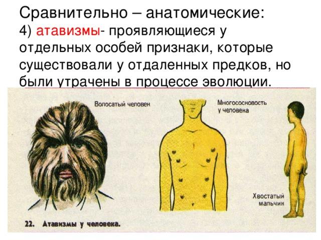 Сравнительно – анатомические:  4) атавизмы - проявляющиеся у отдельных особей признаки, которые существовали у отдаленных предков, но были утрачены в процессе эволюции.